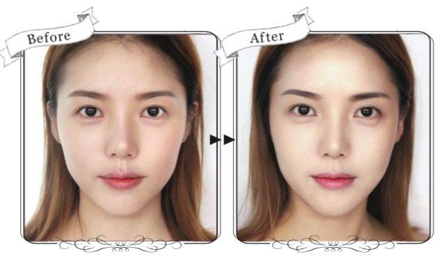頬骨の存在感を薄くする骨格補正メイクテク